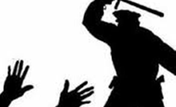 Banjaluka: Policija brutalno pretukla 28-godišnjeg mladića