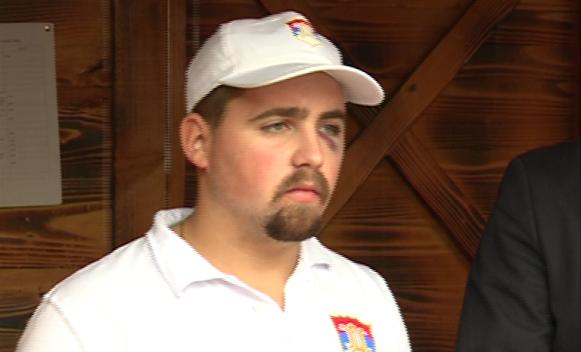 Banjaluka: Pretučen aktivista SDS-a Aleksandar Popović (FOTO)