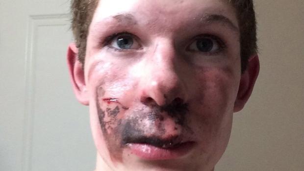 Cigara mu eksplodirala u lice