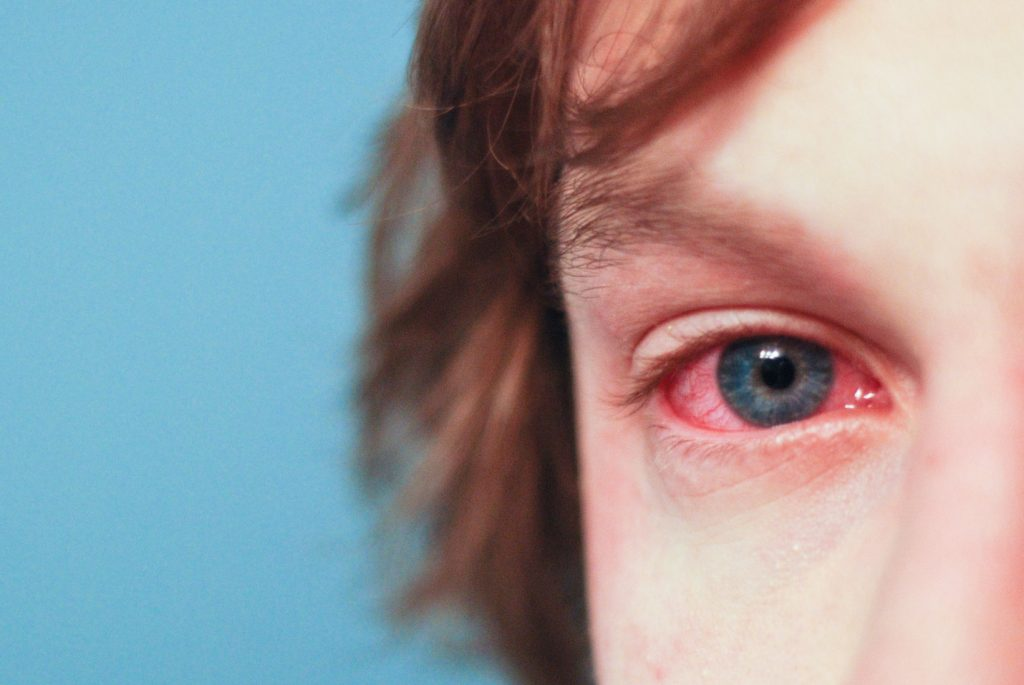 Vodič za preživljavanje alergija