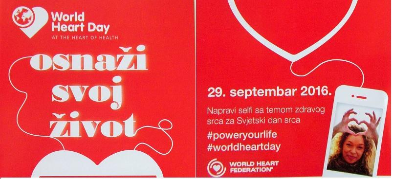 Banja Luka: Svjetski dan srca – u parku besplatno mjerenje krvnog pritiska i šećera u krvi