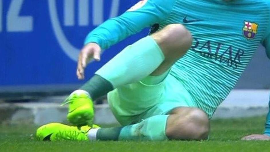 Uznemirujući video: Slomio je nogu Vidalu kod 6-0 za Barsu