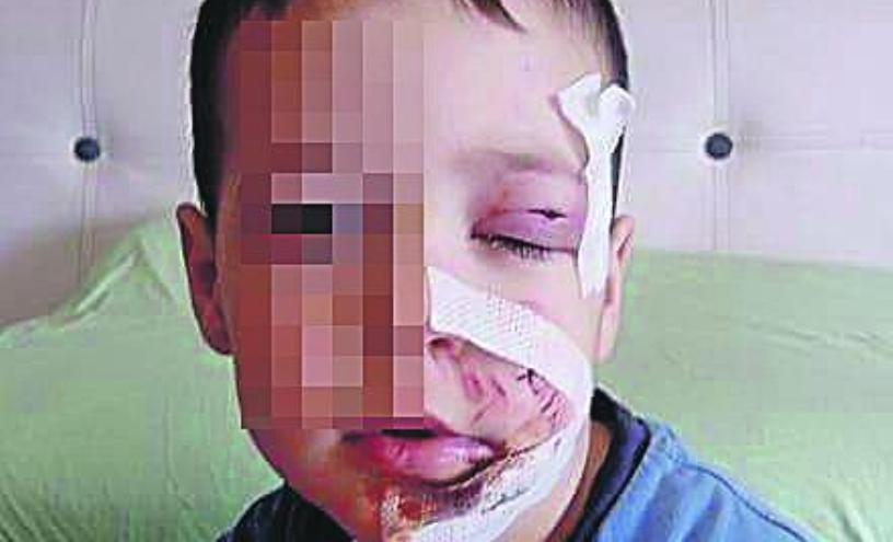 Pas lutalica izujedao četvorogodišnjeg dječaka po licu