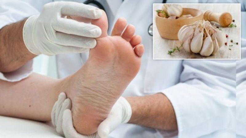 Eliksir od bijelog luka protiv gljivica na stopalima