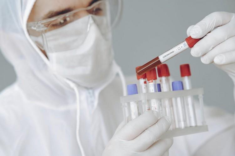 Koja je razlika između PCR i serološkog testa?