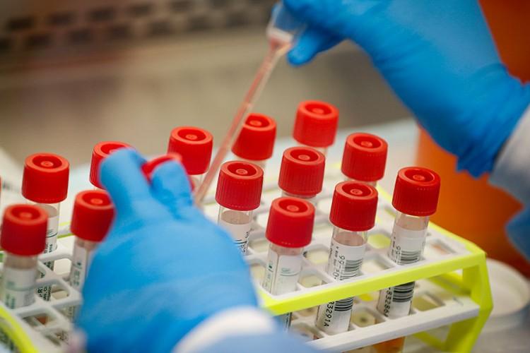U FBiH 28 smrtnih slučajeva i 805 zaraženih koronom